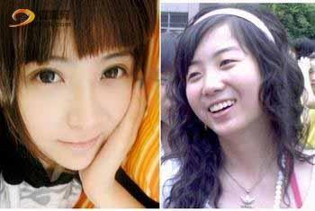 网友称张辛苑整容并发布对比照