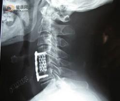 浅析如何引起脊髓损伤的发生