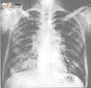 为您揭示肺癌的治疗方法