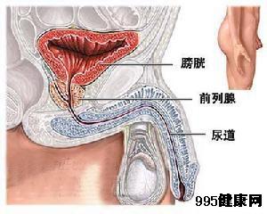 附睾炎概述