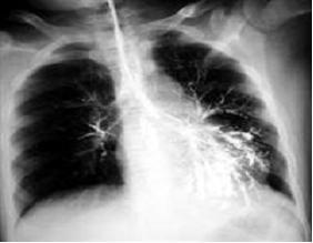 肺部感染怎么治疗