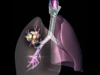 支气管肺癌晚期肝转移保守治疗能康复么