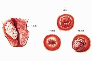 子宫癌如何治疗