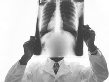 肺部肿瘤治疗方法