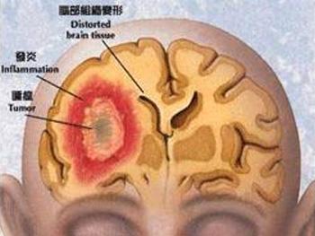 颅内肿瘤患者注意事项