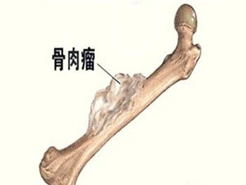 骨肉瘤截肢是否会痊愈