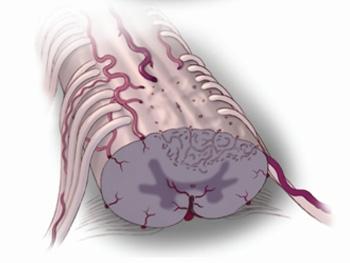 如何防治脊髓炎