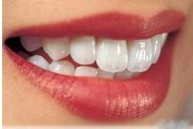 牙齿不齐容易诱发舌癌吗