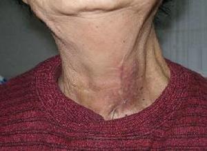 甲状腺囊肿能得癌症吗