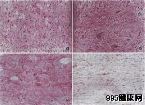 皮肤鳞状癌细胞的临床诊断