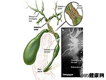 中医分析胆管癌的发病原因