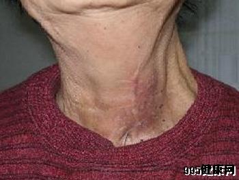 甲状腺癌在早期有什么表现