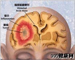 大脑凸面脑膜瘤的临场症状及并发症状