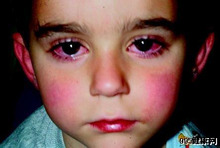 红眼病概述