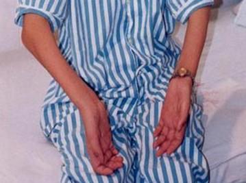 重症肌无力的三种危象是什么