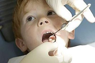 患上蛀牙勿粗心,当心诱发舌癌
