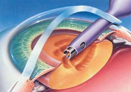 人工晶体植入术护理儿童白内障
