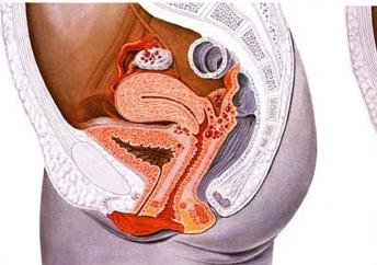 子宫颈癌的症状和表现是怎样的?