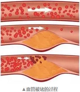 这根血管最易堵,很多人半身不遂才发现!10种食物须常吃