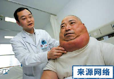 脂肪瘤有哪些症状表现在哪?