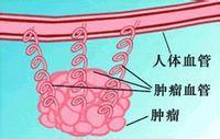 """肿瘤血管抑制因子阻断疗法""""饿死""""癌细胞"""